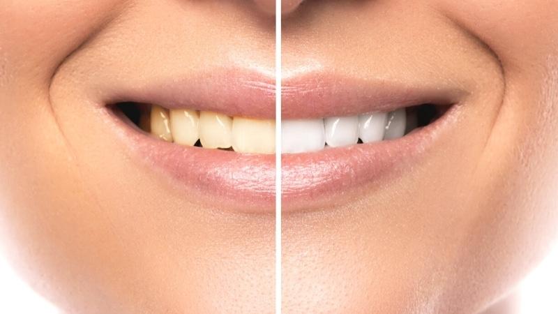 Zahnaufhellung-test